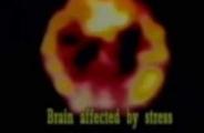 Stres ve başağrısı Alkali iyonize su