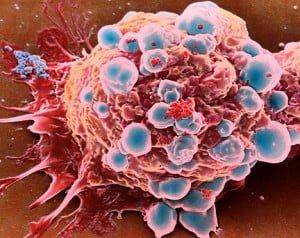 Kanserli Hücrelerin Ölümü